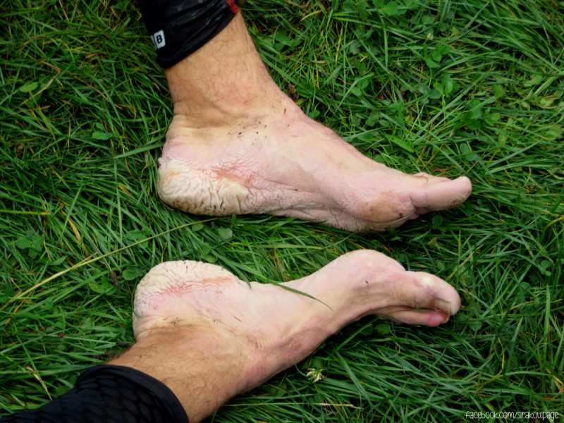 Adventure Cup 2014 - My feet didn't look nice after the tough race.